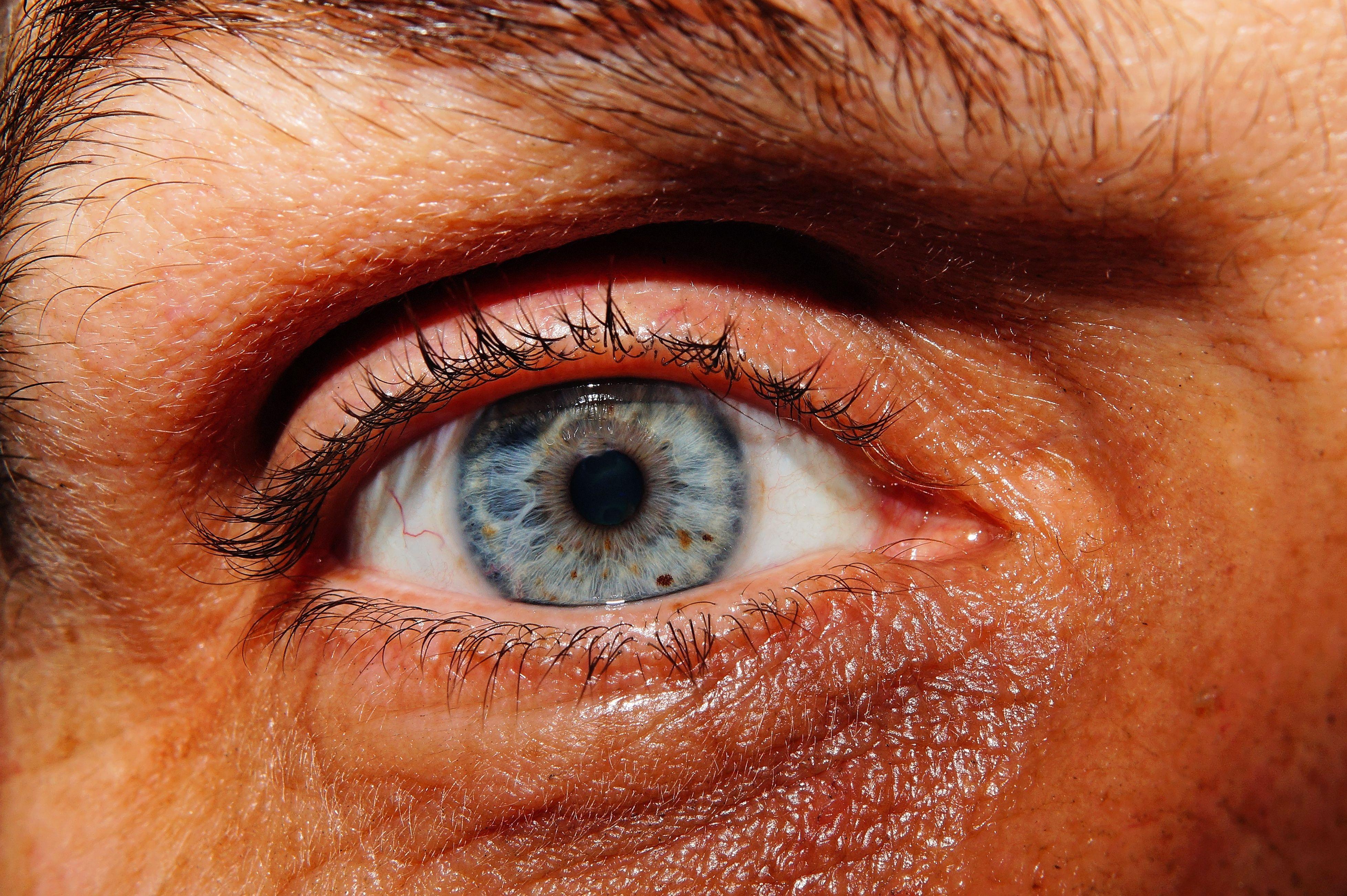 Eu não tenho olho azul